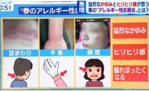 アレルギー性皮膚炎の写真